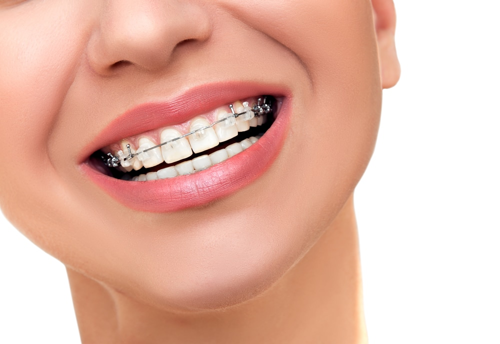 tooth whitening options braces